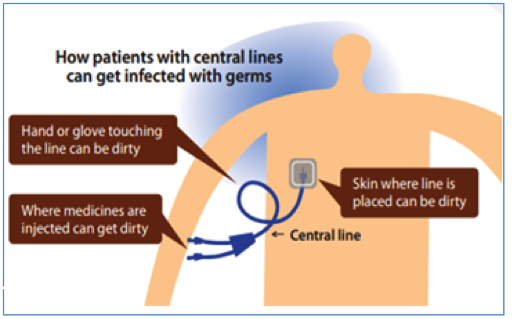 preventing blood stream infections health and social care essay Quality of care patient safety  and affordability of health care for  pediatric central-line associated blood stream infections in the neonatal intensive.